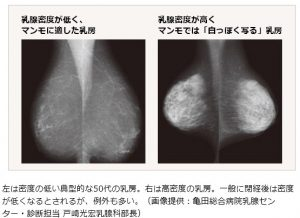 乳腺マッサージは乳腺の密度も影響する
