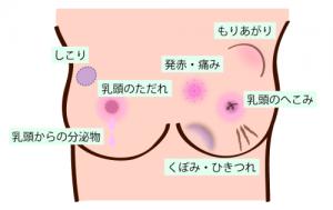 乳がんチェック内容