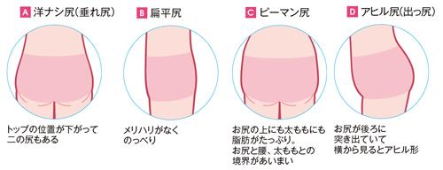 ヒップの形の種類